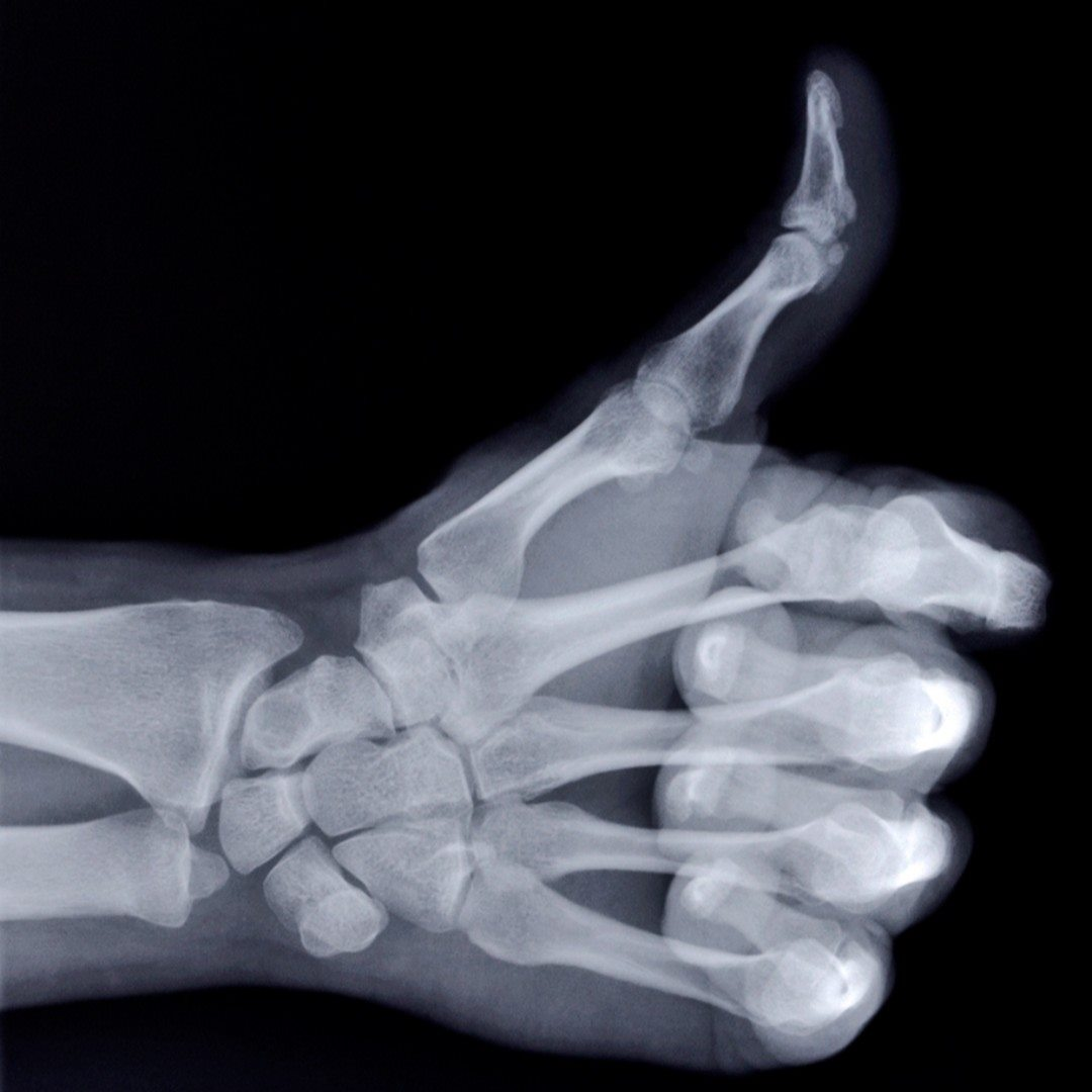 "The ""X"" in ""X-ray"" stands for unknown. #FunFactFriday"